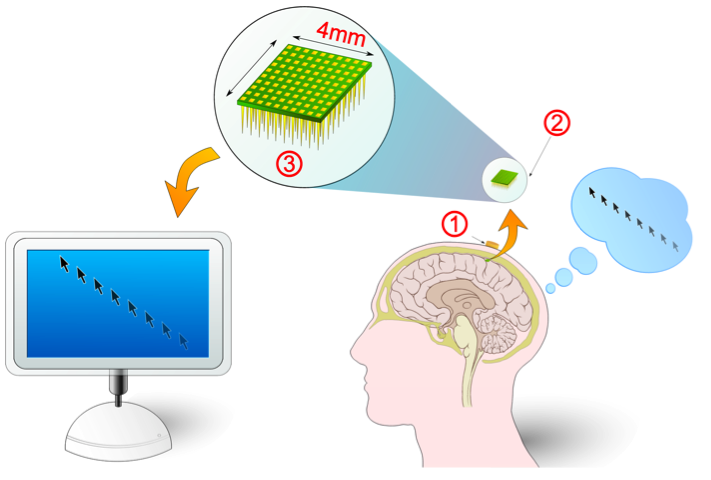 Electronic brain interfaces allow people to interact directly with computers, in a rudimentary way, via their thoughts