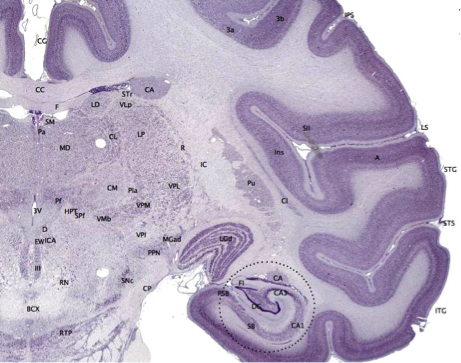 A cross-section of a primate brain, with the cerebral cortex clearly visible as an outer, darkened layer.
